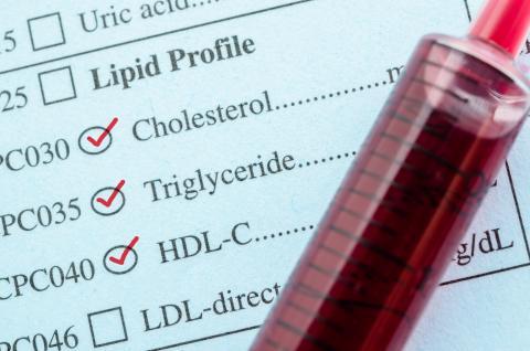 adobestock_111046439_cholesterol_hdl